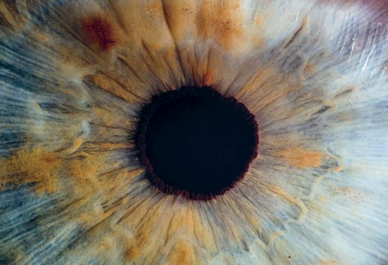 _featured ori_Eye_v2osk_Unsplash
